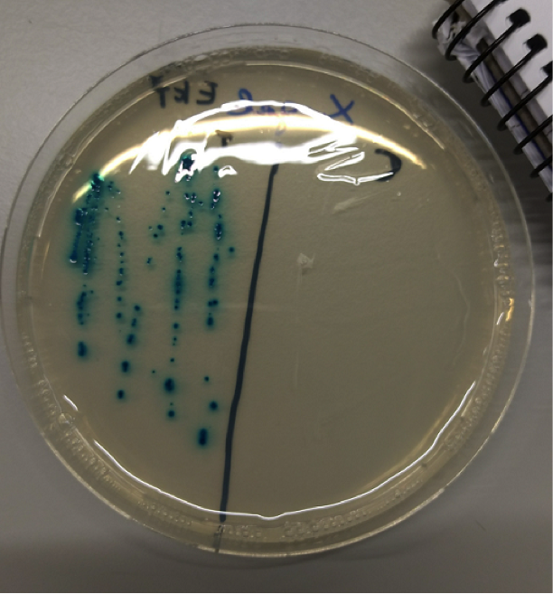 Caption: This may look like blue dots but this is some bacteria I implanted with a portion of DNA, a plasmid, and it's currently producing the enzyme Lactose. This is put on a special petri which makes the bacteria invisible (right) if they don't have this special piece of DNA.